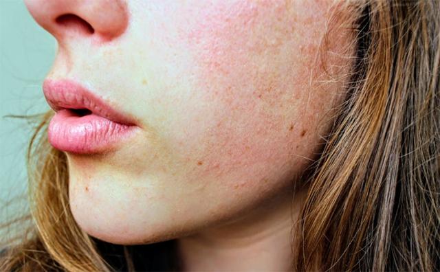乾燥肌の美白ケア方法